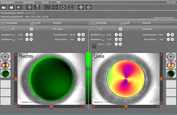 Applikation zur Augenvermessung.